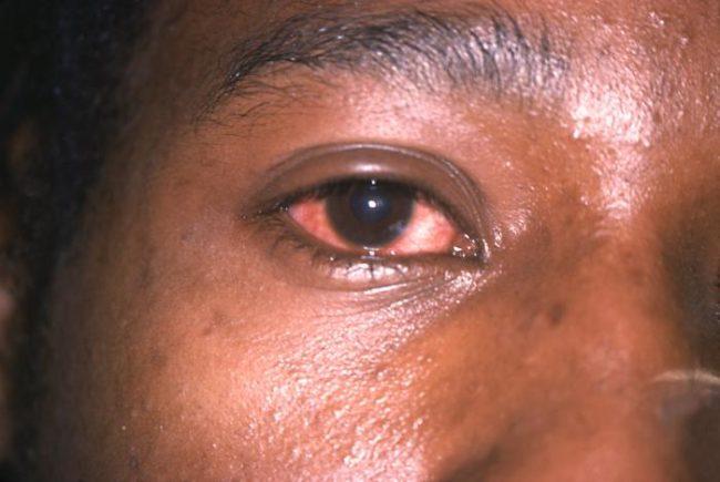 bệnh lậu - gonorrhea