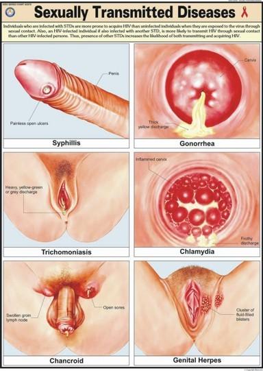 Bệnh lây qua đường tình dục (STDs)