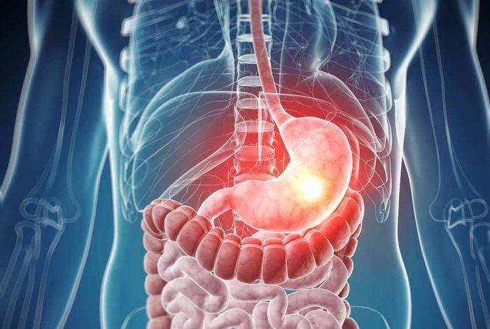 Chữa viêm loét dạ dày, viêm loét tá tràng bằng đông y – BS Nguyễn Đức Kiệt